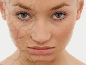 Skincare Mengandung Mercury, Kenali Ciri dan Bahayanya - Bolehshop