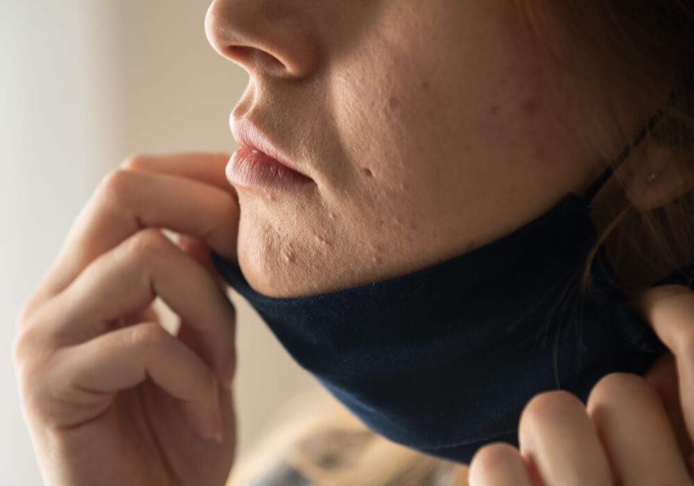 Trend Skincare yang Wajib Ditinggalkan di Tahun 2021 - Bolehshop