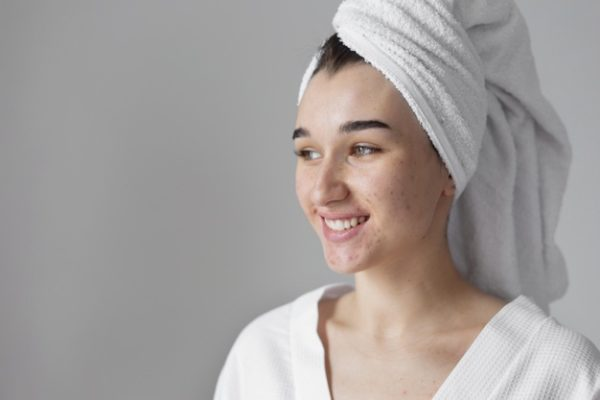 Cara Menghadapi Postpartum Skin Condition