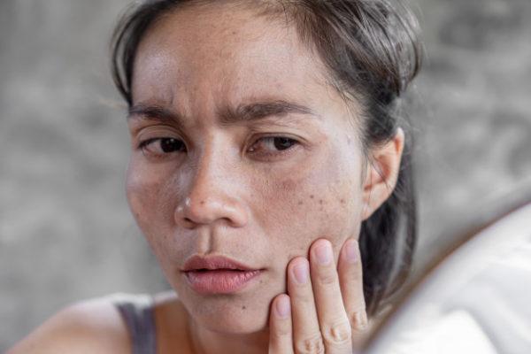 Tranxamic acid dipercaya bisa hilangkan dark spot