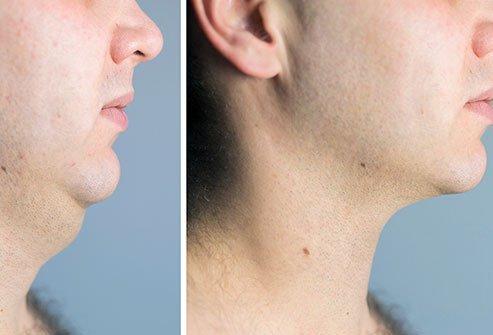 Menghilangkan Double Chin